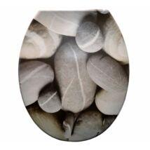 Duroplast műanyag WC ülőkék - szürke kavicsos